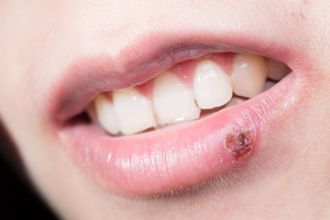 close up of lip with scabbed over cold sore