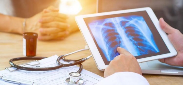 Cystic fibrosis: Existing drug may improve lung function