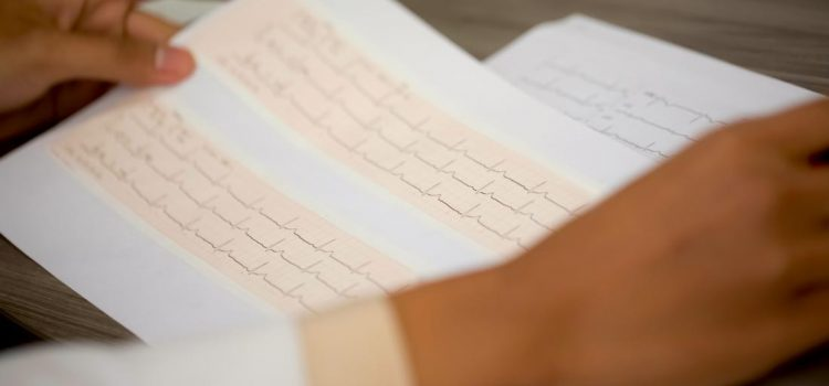 What causes an abnormal EKG result?