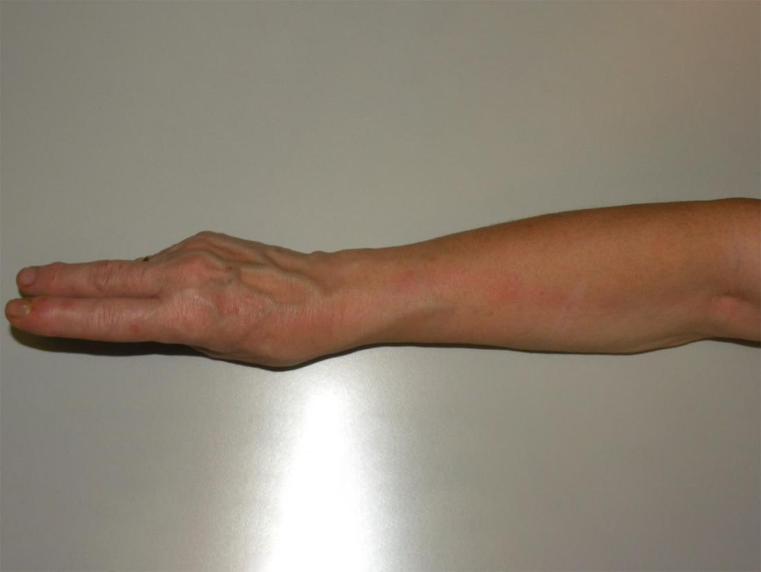 lymphangitis on the arm <br>Image credit: Jmarchn, 2014</br>