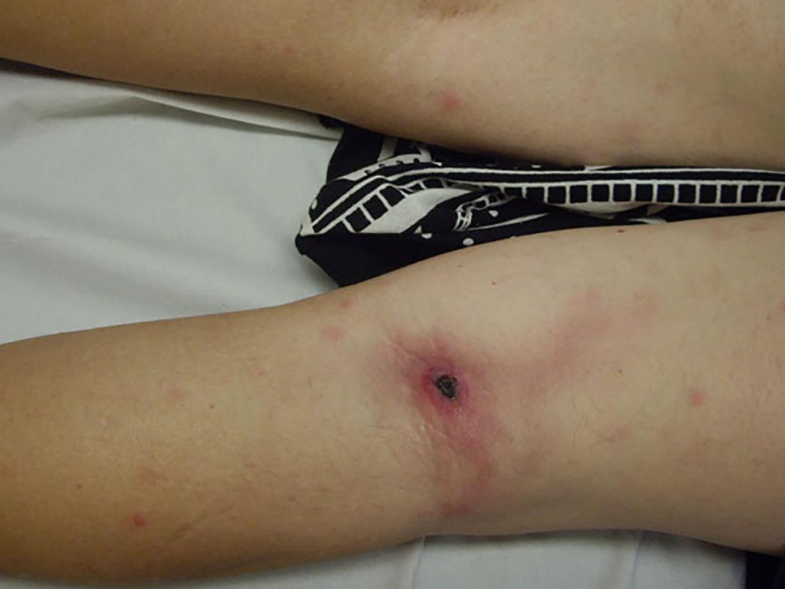 lymphangitis on the back of the leg <br>Image credit: José M. Ramos et. al, 2011</br>