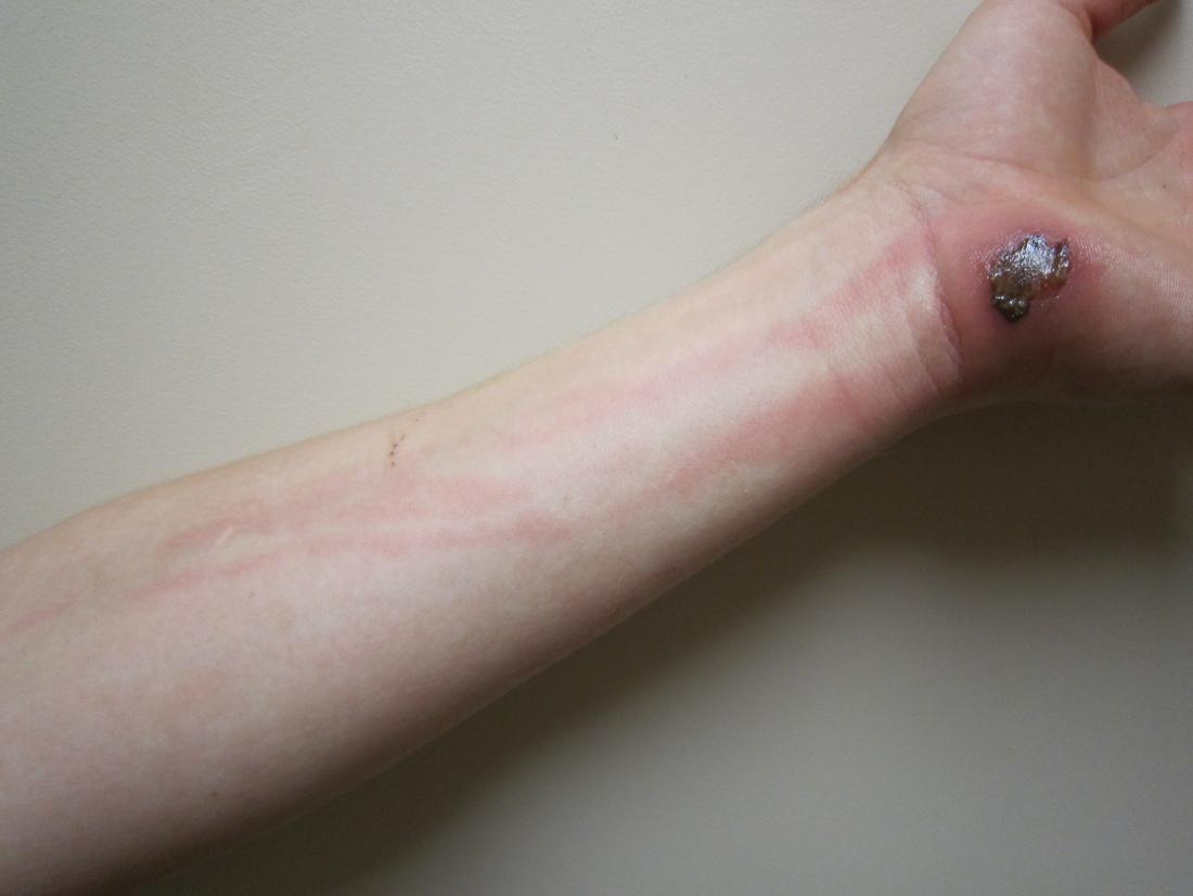 lymphangitis on the forearm <br>Image credit: James Heilman, MD, 2010</br>