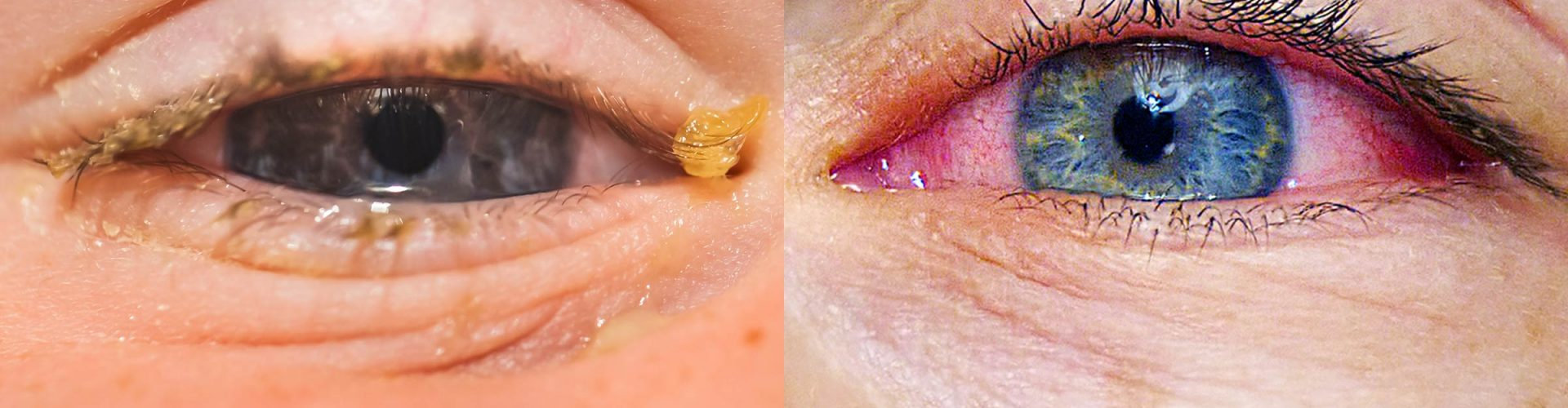 Allergies or Pink Eye: Here's How to Tell the Difference