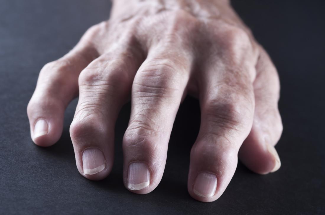 Rheumatoid arthritis affecting fingers