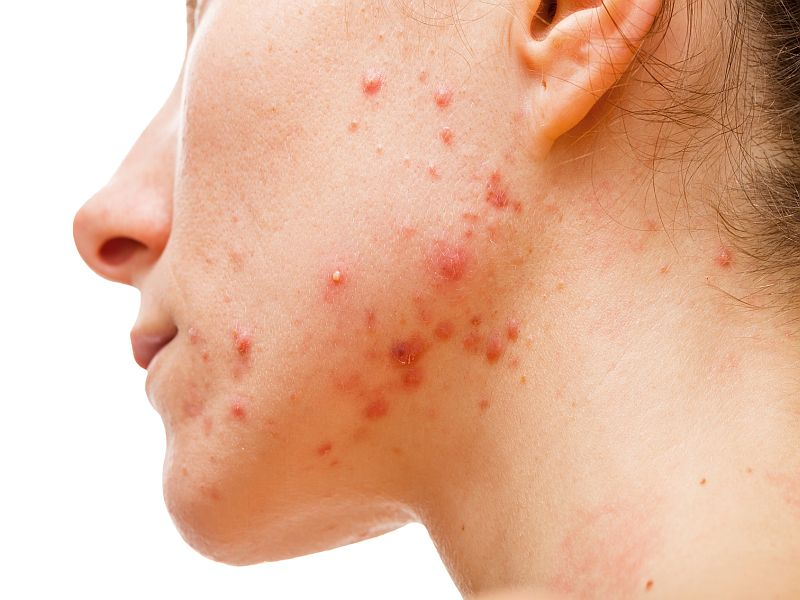 News Picture: Curbing a Skin Oil Might Help Curb Acne, Study Suggests