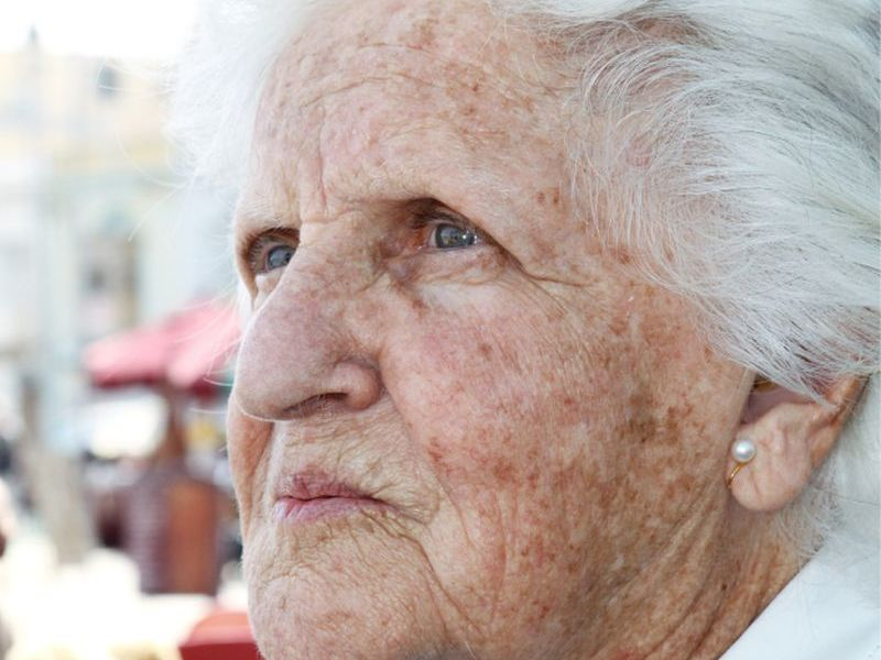 News Picture: Clues to Why Women Have Higher Odds for Alzheimer's