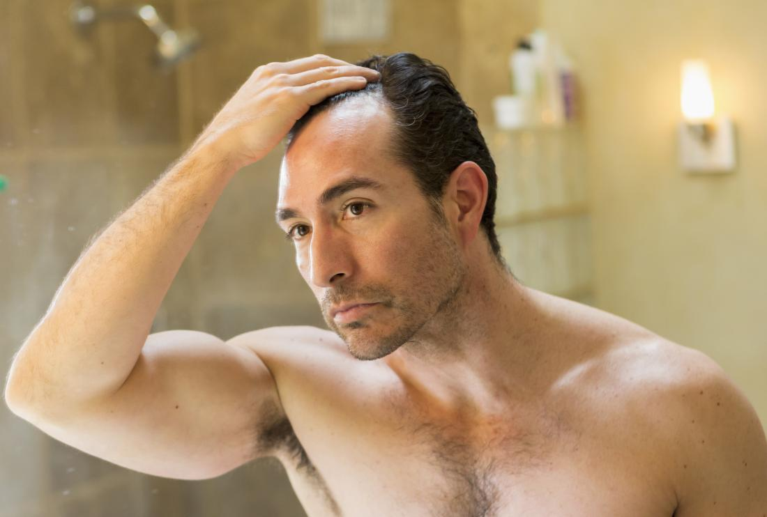 man checking out his receding hairline
