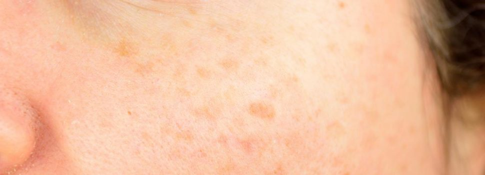 What Links Laser and Retinoic Acid Treatment for Sun Damage?