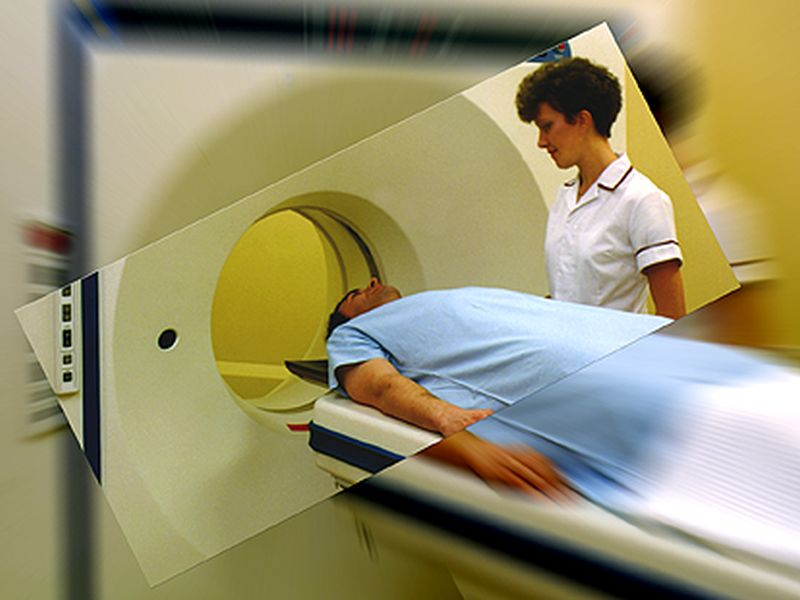 CT Lung Cancer Screening Can Detect Other Serious Smoking-related Conditions